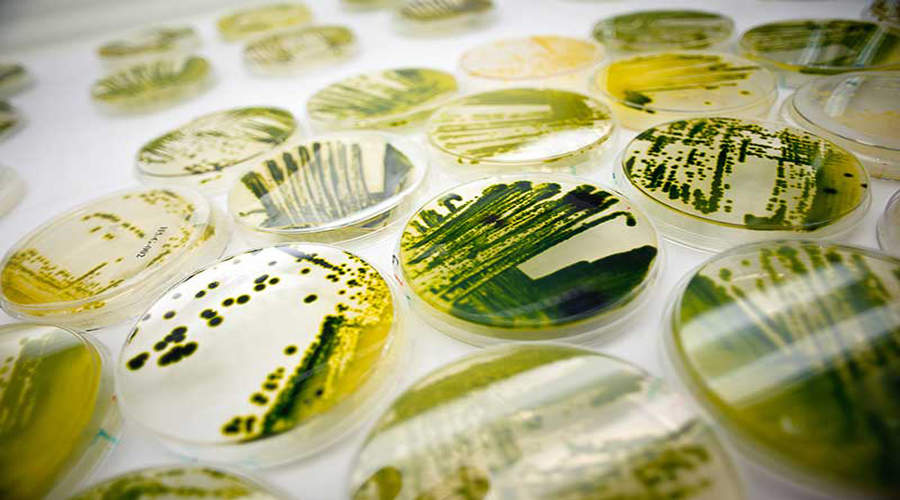 microalgae Experts describe the latest research and newest approaches to the study of microalgae, as well as covering the more traditional methods such as morphotaxonomy.
